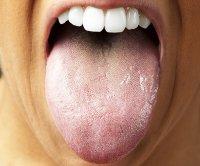 تشخیص سرطان پانکراس با بررسی باکتری زبان!