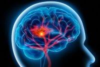 چگونه از سکته مغزی پیشگیری کنیم؟