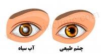 آب سیاه چشم و درمان آن