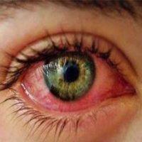 اگر این مشکلات را دارید بیماری چشمی در کمین شماست