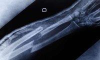 دیابتیها در معرض شکستگی استخوان قرار دارند