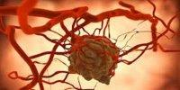 جدیدترین راه برای درمان «سرطان»