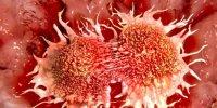سرطان «مری» پیشبینی میشود