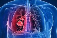 تنگی نفس و سرفه اولین علائم سرطان ریه هستند