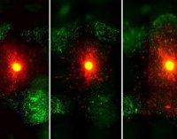 بررسی سهبعدی تومورهای مغز با یک روش جدید تصویربرداری