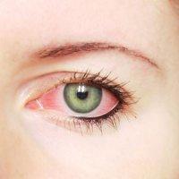 اگر این علائم را در چشمان خود دارید، حتما به پزشک مراجعه کنید