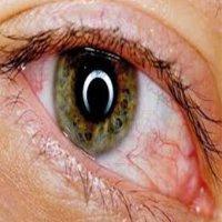 کدام تغییرات در چشم نشانه ابتلا به کروناست؟