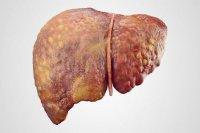 بیتوجهی به درمان کبد چرب به مرگ تدریجی میانجامد