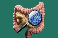 تاثیر داروی کاهنده کلسترول بر بهبود ترکیب باکتری های روده چاق ها