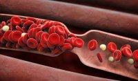 لخته شدن خون در ریه عامل جدید مرگ ناشی از کرونا