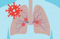 تایید ارتباط نارساییِ تنفسی ناشی از کرونا با گروه خونی
