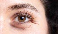تعیین سن زیستی با اسکنر چشم