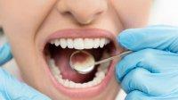 بهداشت ضعیف دهان و دندان موجب تشدید بیماری التهاب روده می شود