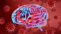 سکته مغزی و روان پریشی در کمین بیماران نوع شدید کووید ۱۹