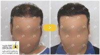 با محدودیتهای موجود در جراحی کاشت مو آشنا شوید