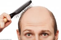 پنج غذای مؤثر در کنترل ریزش موی ارثی