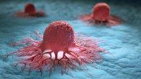 سرطان پروستات چگونه متاستاز میکند؟