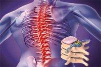 روش جدیدی برای درمان آسیبهای نخاعی یافته شد