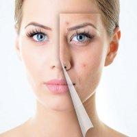 بهترین روش های جوانسازی پوست در منزل