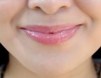 5  درمان خانگی برای بهبود لبهای ترک خورده