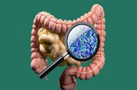 میکروبیم های روده نقش مهمی در عملکرد مغز دارند