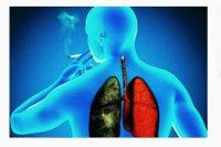 هواسازی پشتیبان فشار در برابر فشار مسیرهوای مثبت پیوسته برای درمان ورم ریوی قلبی حاد